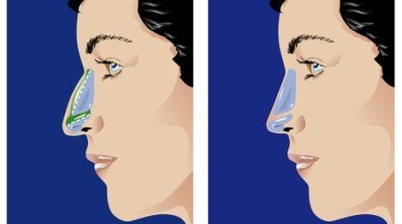 Il naso più bello: sfida di rinoplastica tra i chirurghi plastici più bravi del mondo Il 10 e 11 ottobre a Salò (Brescia) due squadre di esperti opereranno in diretta per decretare la tecnica migliore